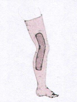 ПОВЯЗКА ДО ВЕРХНЕЙ ТРЕТИ БЕДРА со стабилизацией коленного сустава